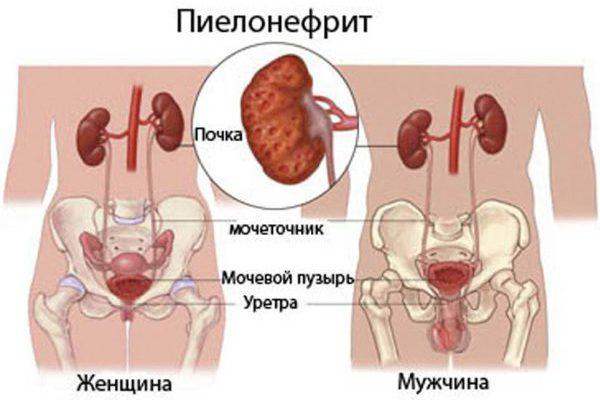 Пиелонефрит инфекция