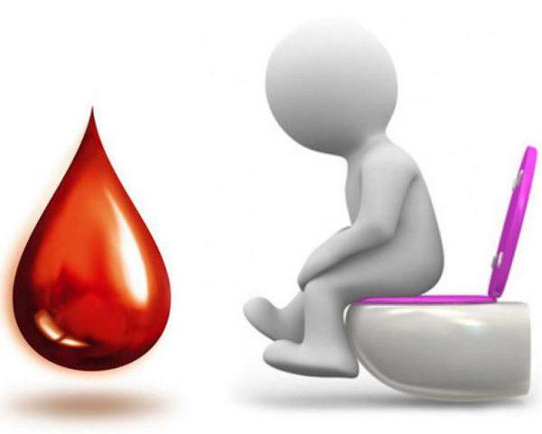Кровь в урине