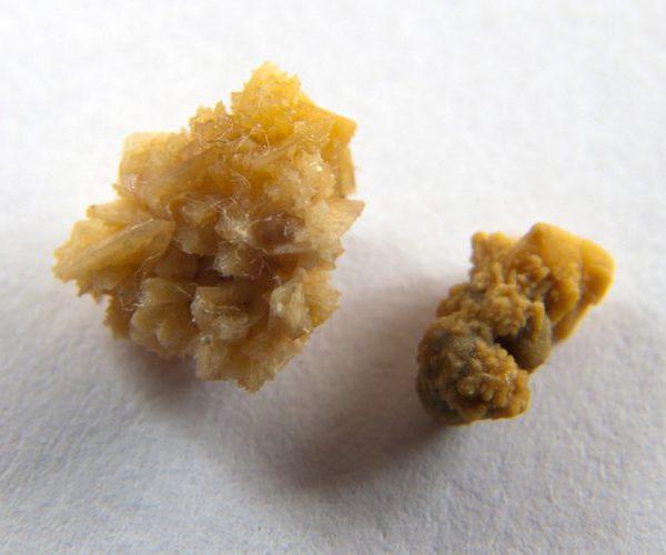 Оксалатные камни