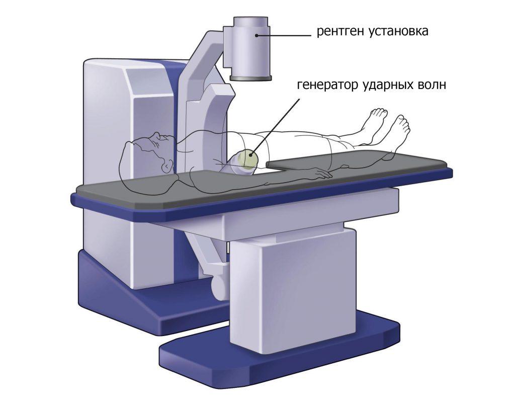 литотропсия