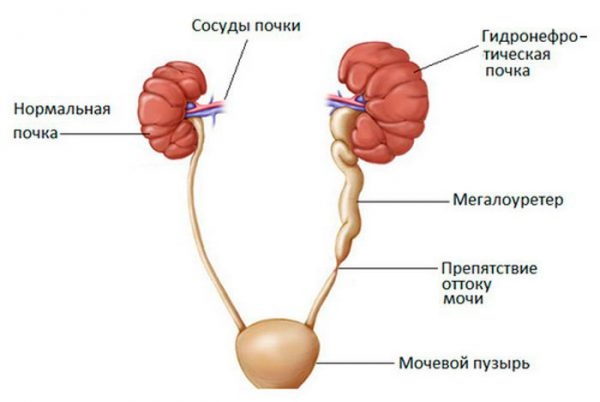 гидронефроз почки при онкологии