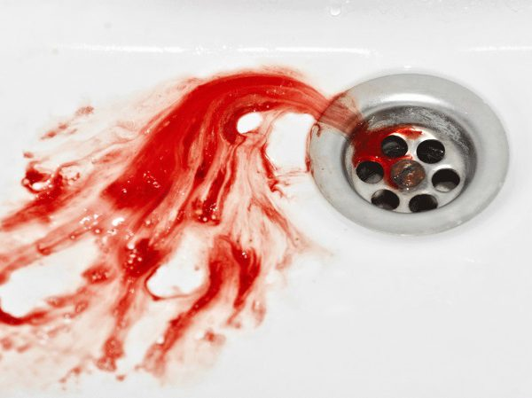 Кровотечение из пищевода