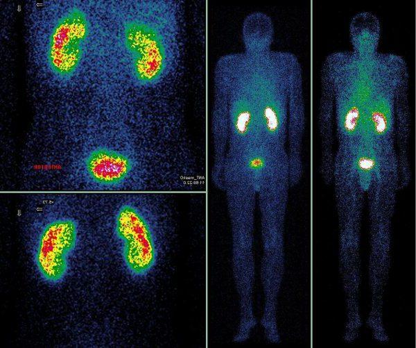Радионуклидное исследование почек