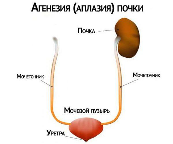 Аплазия
