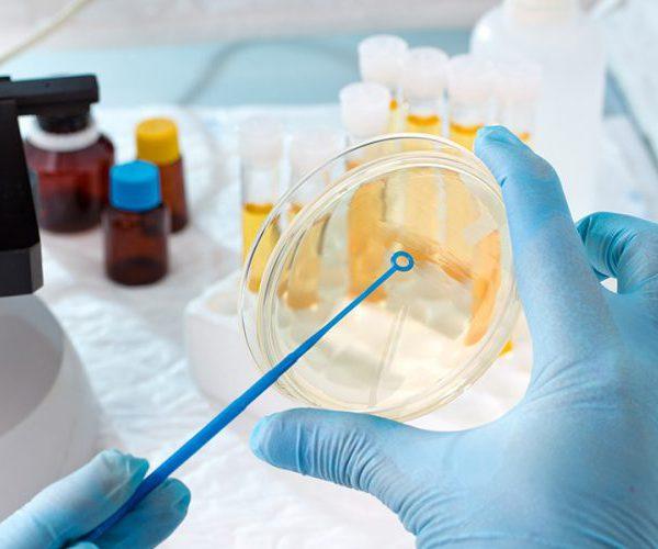 Бактерии в моче у женщин, причины их повышения в анализе