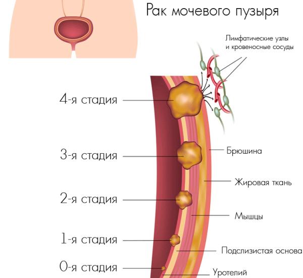 Рак мочевого пузыря стадии