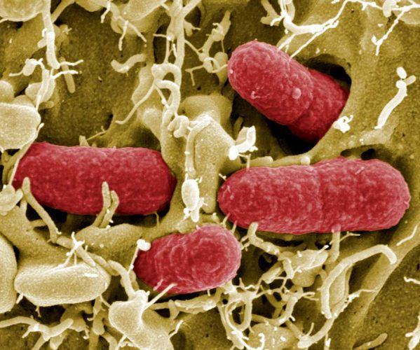 Escherichia coli в моче у мужчин