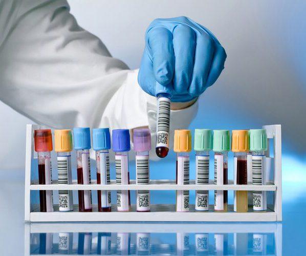 Анализы крови мочи