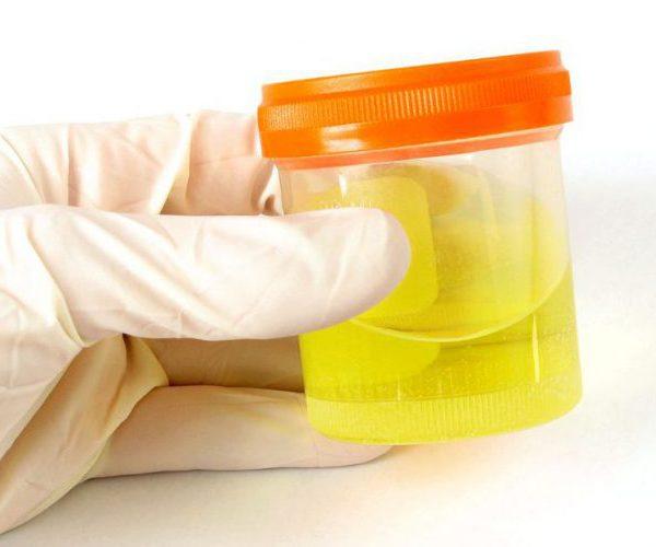 Повышенные лейкоциты в мазке у женщин: причины и лечение