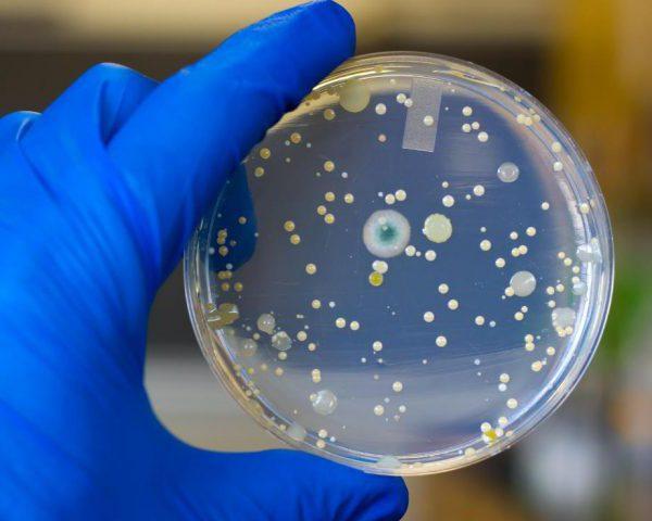 Посев мочи на условно патогенную флору