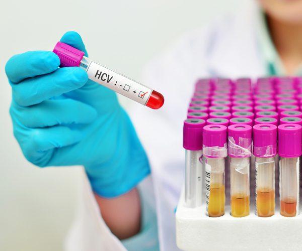 Гепатит диагностика