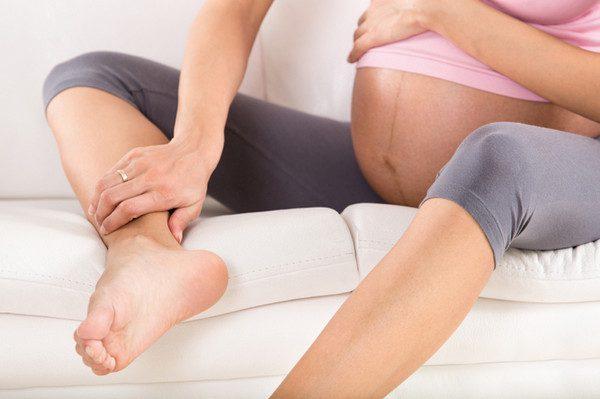 Отеки беременность